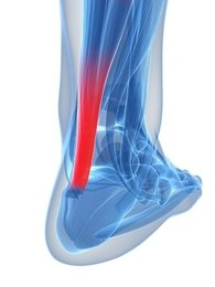 Management tips for Achilles Tendinopathy
